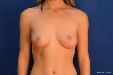 Chicago Breast Lift 2537 -  After Image 1
