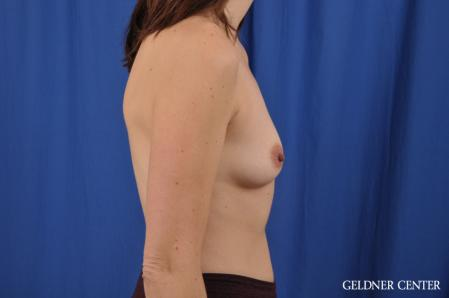 Breast Augmentation: Patient 151 - Before Image 2