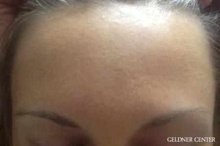 Dermapen patient 1832 before and after gallery photos -  After Image 1