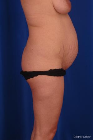 Lipoabdominoplasty: Patient 1 - Before Image 2