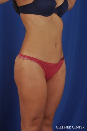 Liposuction: Patient 22 - After Image 2