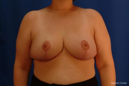 Breast Reduction Streeterville, Chicago 2522 - After Image