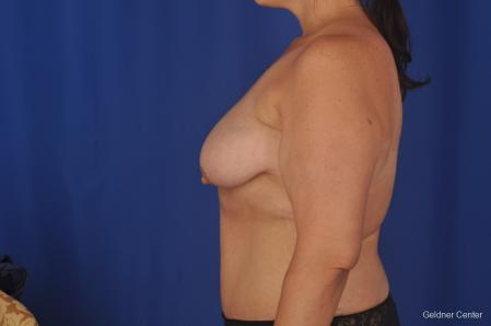 Breast Lift: Patient 18 - Before and After Image 4