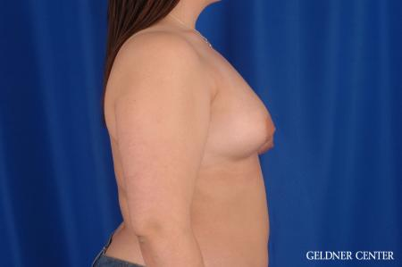 Breast Lift Hinsdale, Chicago 2615 - Before Image 2