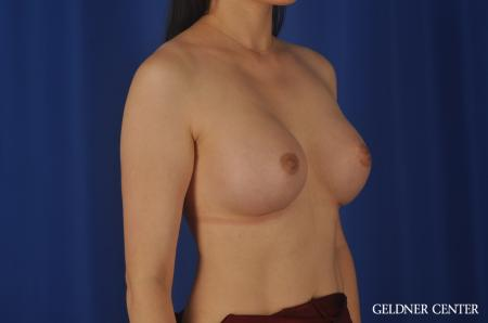 Breast Augmentation Hinsdale, Chicago 8751 -  After Image 3