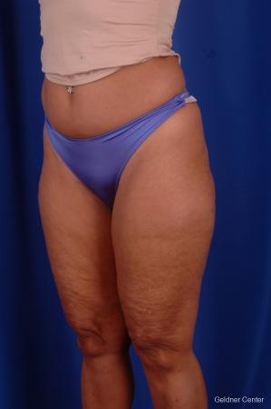 Liposuction: Patient 7 - Before and After Image 5