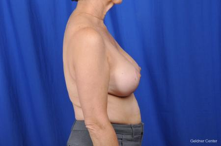 Breast Augmentation Lake Shore Dr, Chicago 2057 -  After Image 2