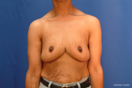 Breast Reduction Hinsdale 2440 - After Image