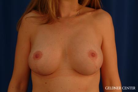 Breast Lift: Patient 32 - After Image 1