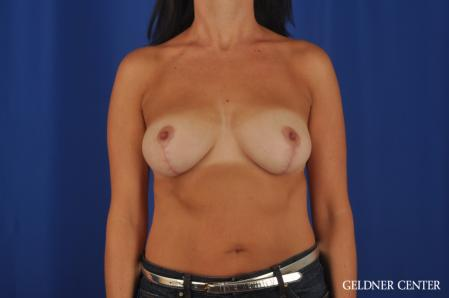 Breast Lift: Patient 48 - After Image 1