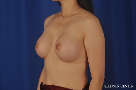 Breast Augmentation Hinsdale, Chicago 8751 -  After Image 4