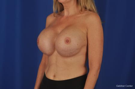 Breast Augmentation Streeterville, Chicago 2388 - Before and After Image 4