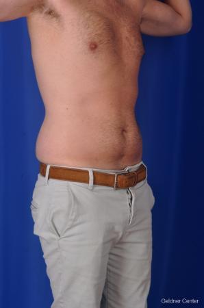 Liposuction For Men: Patient 3 - Before Image 2