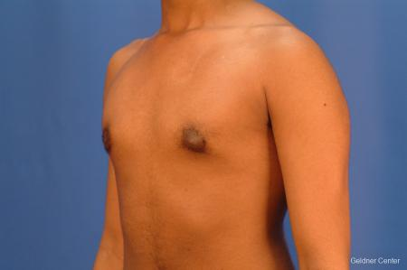 Gynecomastia: Patient 5 - After Image 5