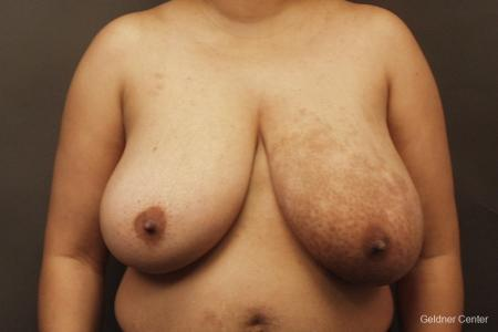 Chicago Breast Reduction 2375 - Before Image