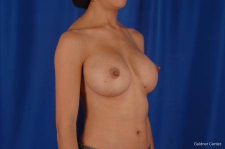 Chicago Breast Augmentation 2339 -  After Image 3