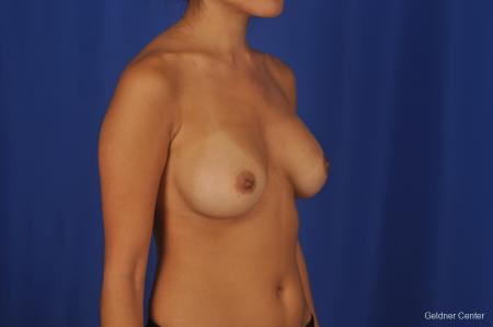 Breast Augmentation Streeterville, Chicago 2298 - Before Image 3