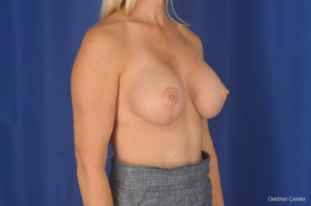 Breast Lift: Patient 19 - After Image 3