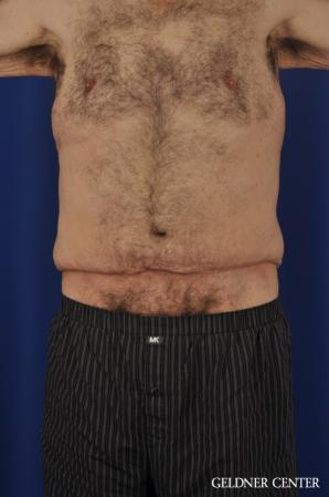 Liposuction For Men: Patient 11 - Before Image 1