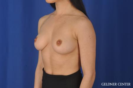 Breast Augmentation: Patient 145 - Before and After Image 4