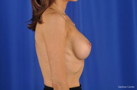 Breast Lift Chicago 2296 -  After Image 2