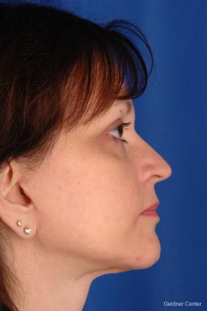 Neck Lift: Patient 2 - After Image 2