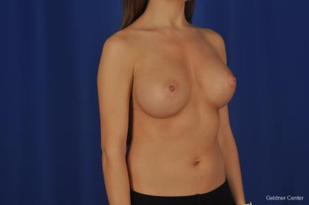 Breast Augmentation Hinsdale, Chicago 2373 -  After Image 3