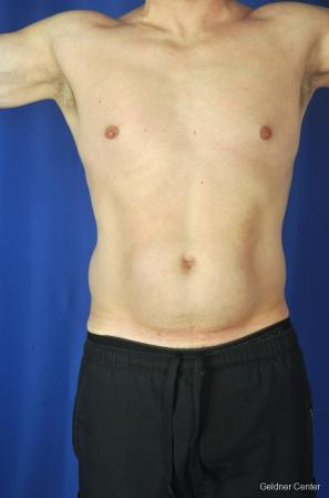 Liposuction-for-men: Patient 9 - Before Image