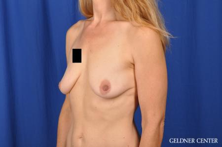 Chicago Breast Augmentation 5467 - Before and After Image 4