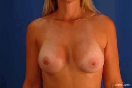 Breast Augmentation Lake Shore Dr, Chicago 2418 -  After Image 1