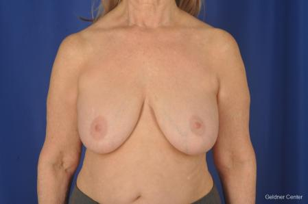 Complex Breast Augmentation: Patient 2 - Before Image
