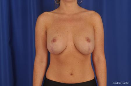 Complex Breast Augmentation Lake Shore Dr, Chicago 2290 - After Image