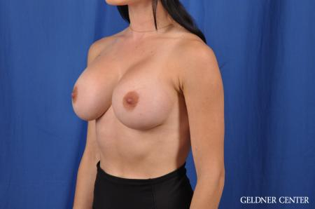 Breast Augmentation: Patient 145 - After Image 4