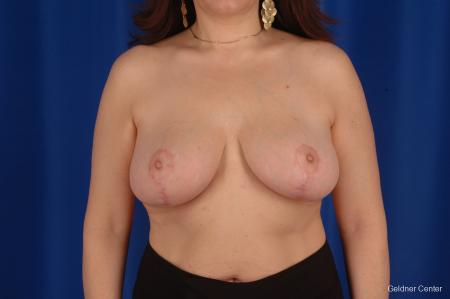 Breast Reduction Streeterville, Chicago 2289 - After Image