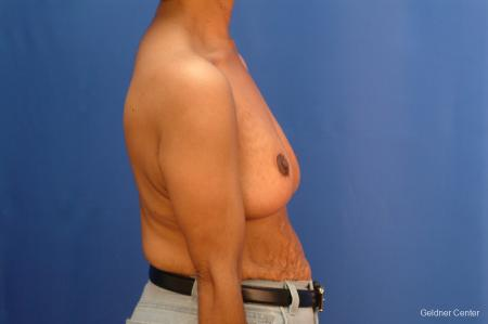 Breast Reduction Hinsdale 2440 -  After Image 2