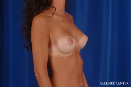 Breast Augmentation: Patient 113 - After Image 2