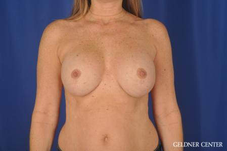 Breast Lift: Patient 46 - After Image 1