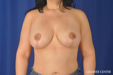Breast Augmentation: Patient 140 - After Image 1