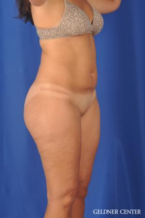 Liposuction: Patient 47 - Before Image 2