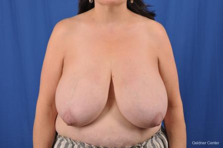 Breast Reduction: Patient 29 - Before Image 1