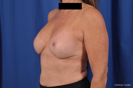 Breast Augmentation: Patient 153 - After Image 5