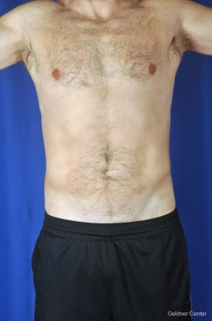 Liposuction-for-men: Patient 6 - After Image