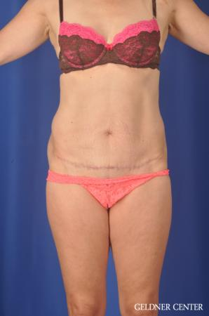 Chicago Abdominoplasty 11854 -  After Image 1