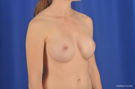 Chicago Breast Augmentation 2304 -  After Image 3