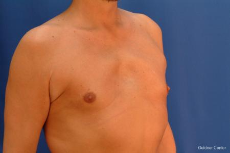 Gynecomastia: Patient 6 - After Image 3