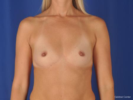 Breast Augmentation: Patient 148 - Before Image 1