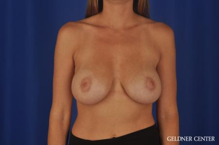 Complex Breast Augmentation Streeterville, Chicago 5478 -  After Image 1