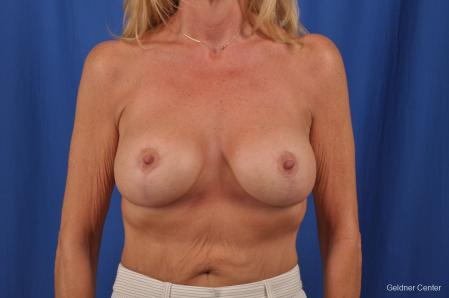 Breast Lift: Patient 44 - After Image 1