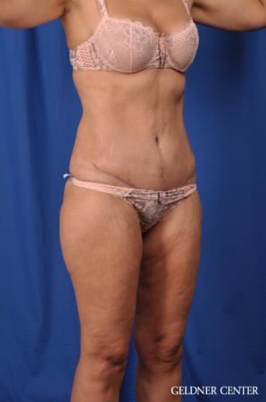 Lipoabdominoplasty: Patient 5 - After Image 2