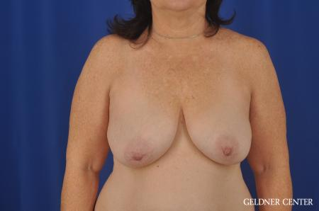 Breast Lift Hinsdale, Chicago 3232 - Before Image 1